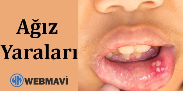 Ağız Yaraları: Nedenleri, Teşhisi ve Tedavisi